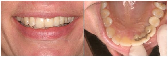 600_Implant After