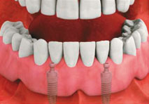Implant Stabilized Denture 2